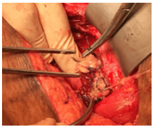Caesarean Section Scar Dehiscence with Peritonitis: Does