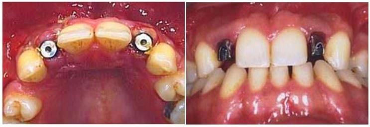 agenesia denti cause gas